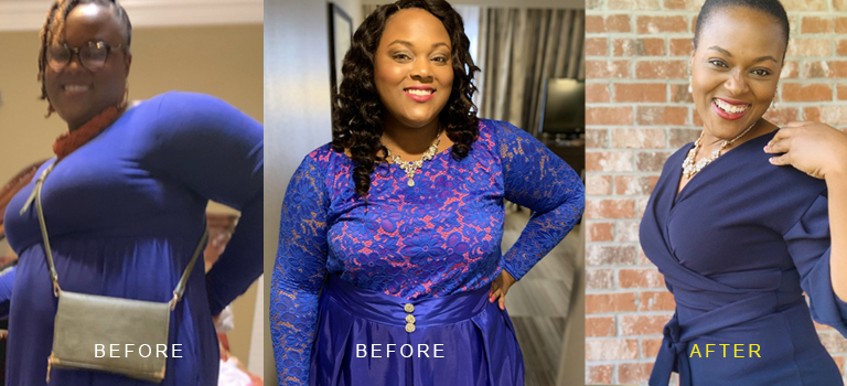 Brittany's Weight Loss Surgery Story