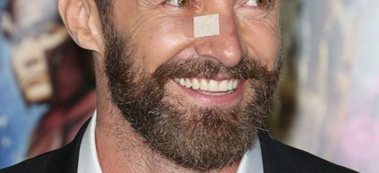 Actor Hugh Jackman Treated for Skin Cancer, Urges Sunscreen Use